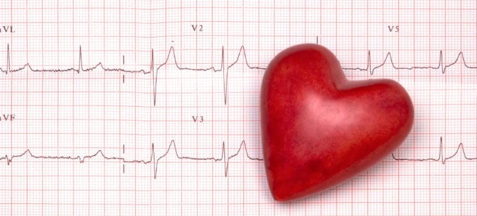 heart ekg paper
